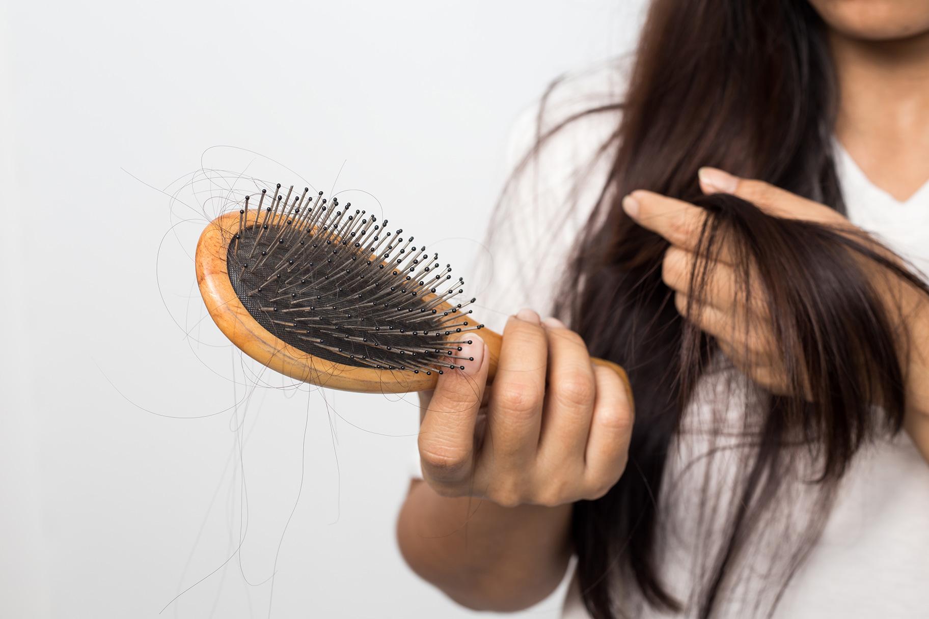 7 مورد از مهمترین علل ریزش مو