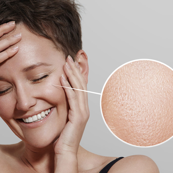 تصویر پیشگیری بهتر از درمان پوست چرب