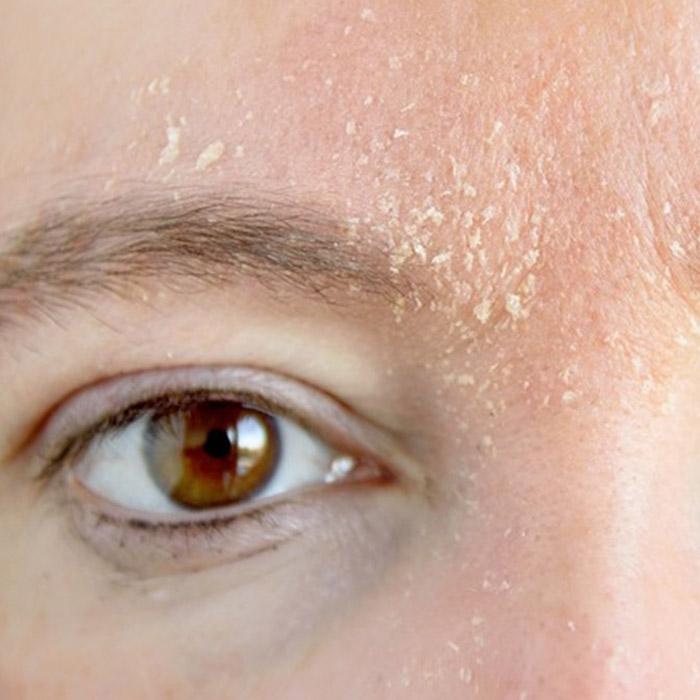 علائم پوست خشک