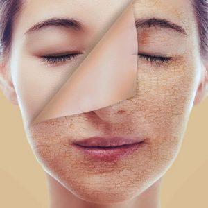 پوست خشک، را جدی بگیرید