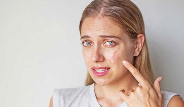 مواردی که باعث جوش زدن می شود، عوارض نشستن صورت