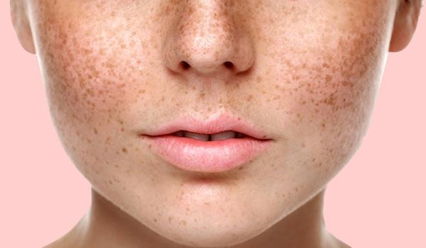 کرم ضد لک، درمان لک پوست